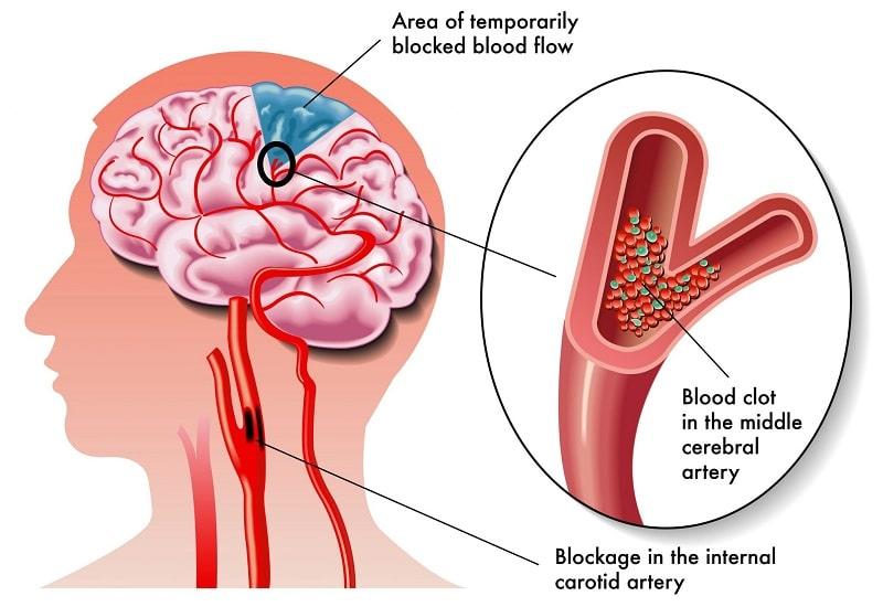 Hình 1 : Tìm hiểu định nghĩa bệnh thiếu máu não